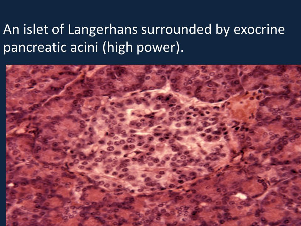 An islet of Langerhans surrounded by exocrine pancreatic acini (high power).