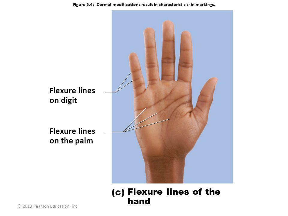 Flexure lines on digit Flexure lines on the palm Flexure lines of the