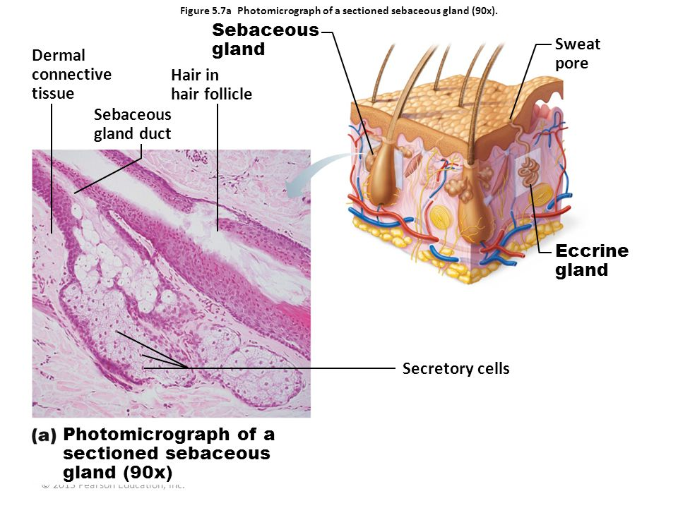 Figure 5.7a Photomicrograph of a sectioned sebaceous gland (90x).