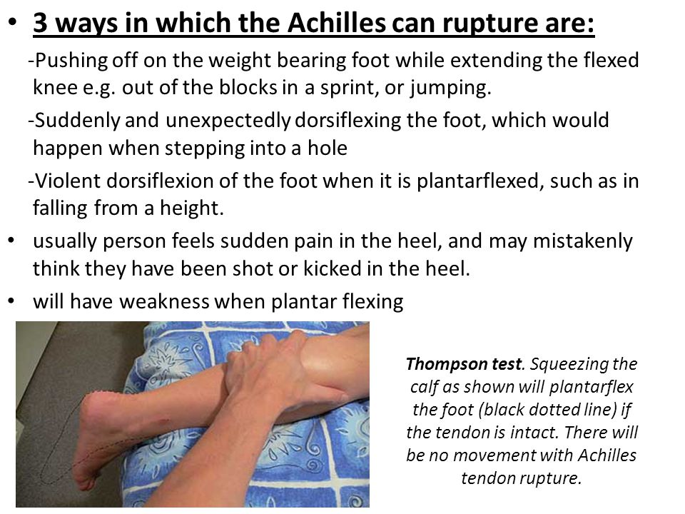 3 ways in which the Achilles can rupture are: