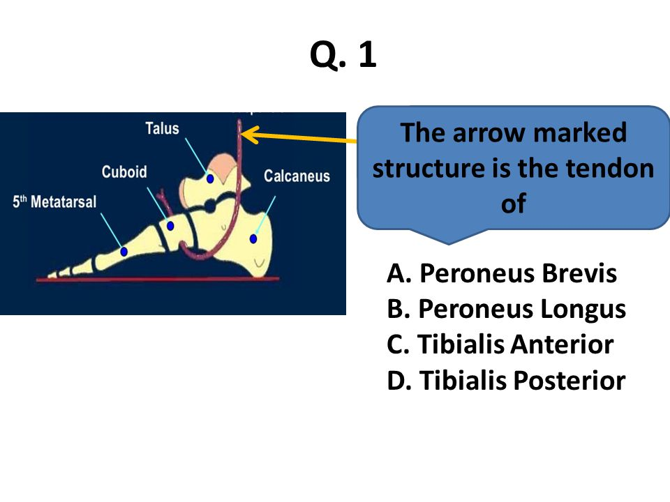 The arrow marked structure is the tendon of