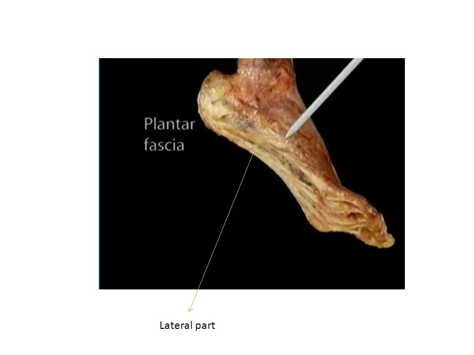 Lateral part