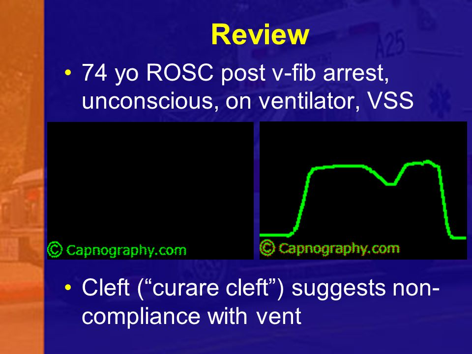 Review 74 yo ROSC post v-fib arrest, unconscious, on ventilator, VSS