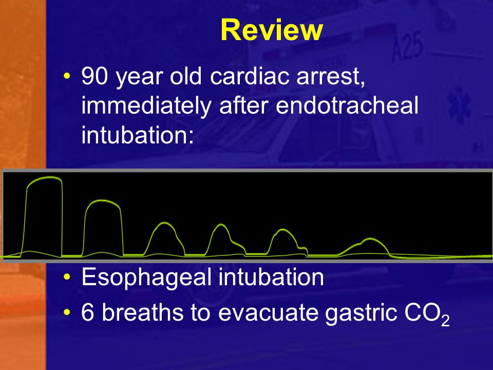 Review 90 year old cardiac arrest, immediately after endotracheal intubation: Esophageal intubation.