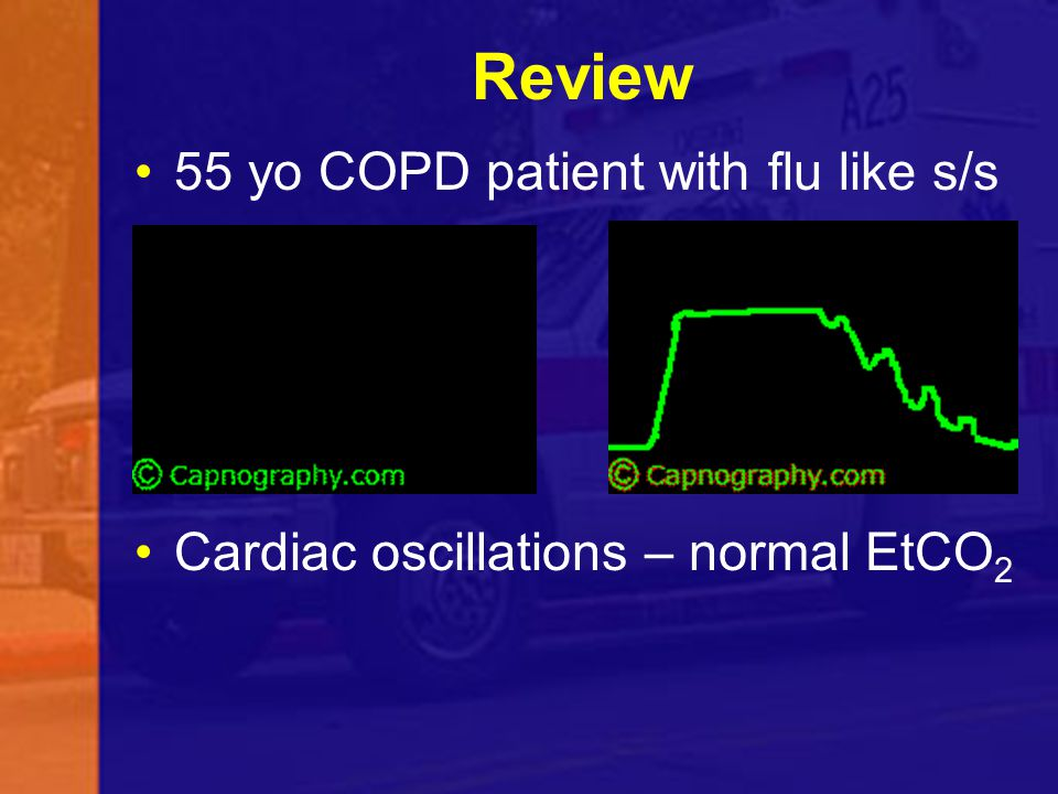 Review 55 yo COPD patient with flu like s/s
