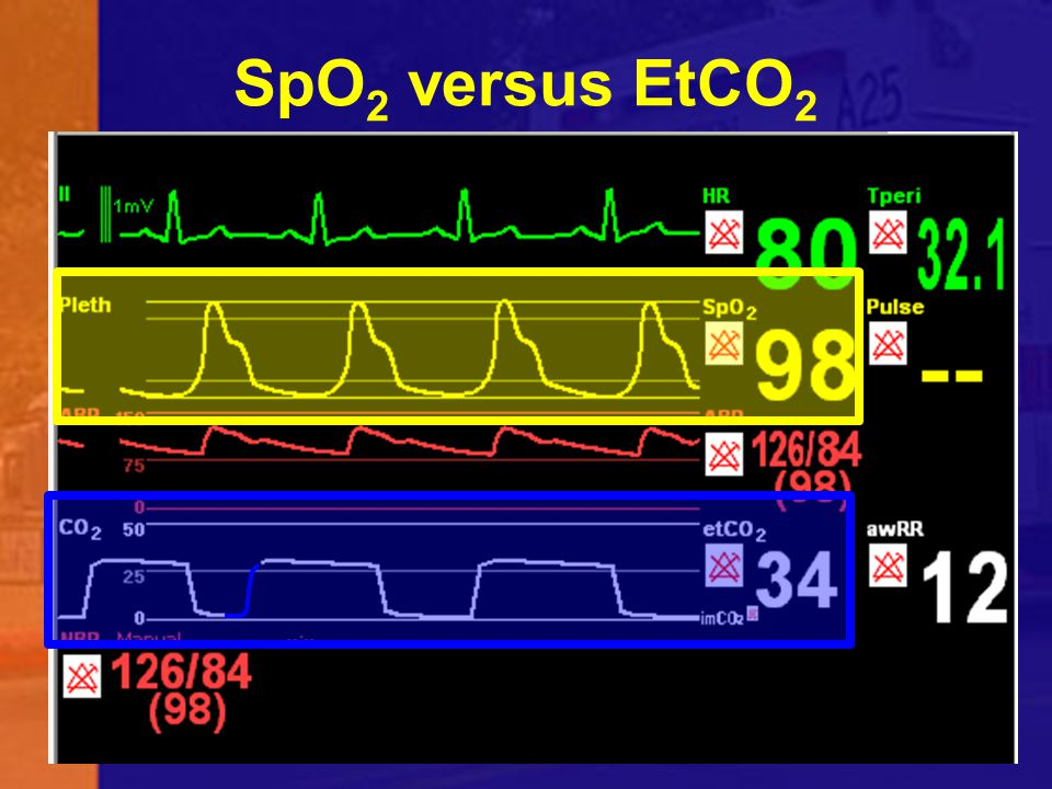 SpO2 versus EtCO2 The is a significant difference between pulse oximetry and capnography.