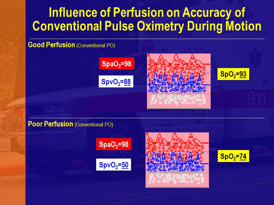 Influence of Perfusion on Accuracy of Conventional Pulse Oximetry During Motion