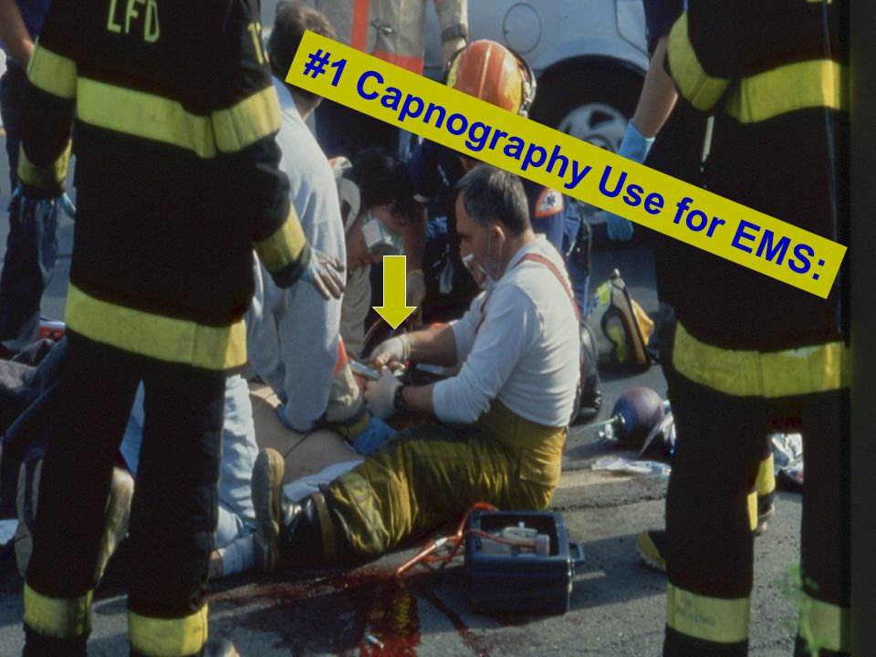 #1 Capnography Use for EMS: