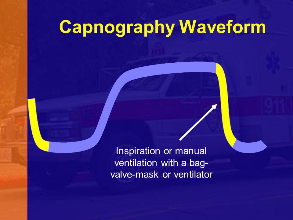 Inspiration or manual ventilation with a bag-valve-mask or ventilator