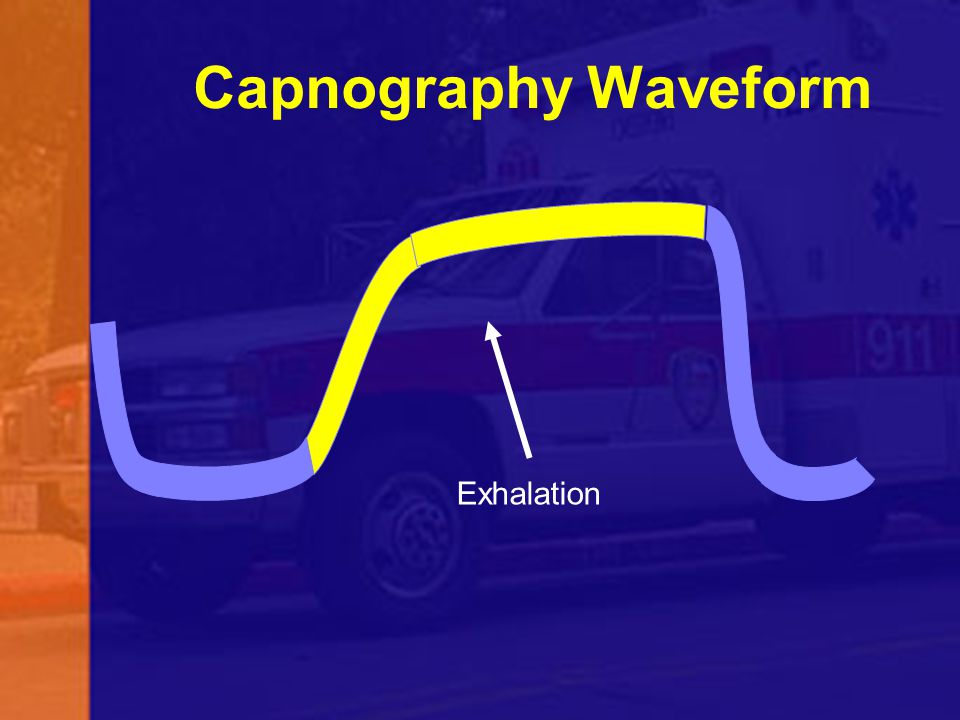 Capnography Waveform Exhalation 55