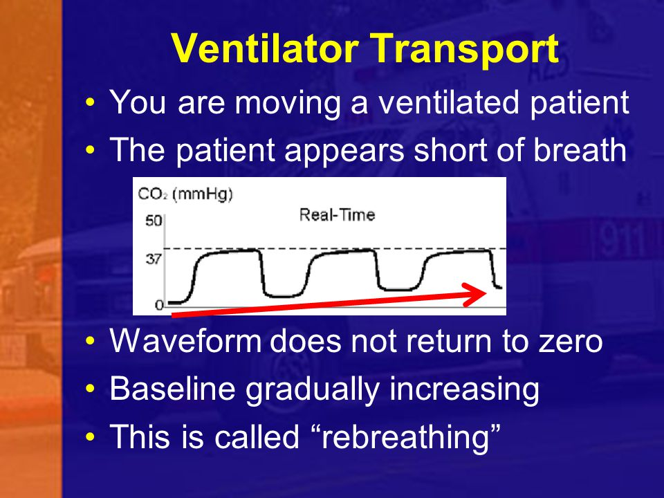 Ventilator Transport You are moving a ventilated patient