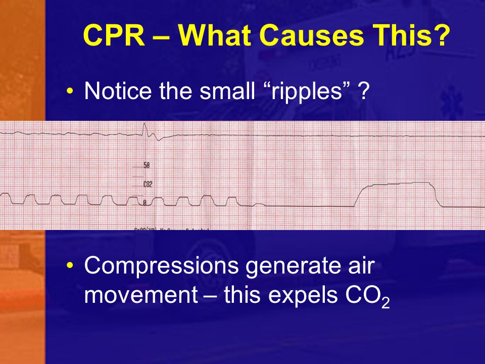 CPR – What Causes This Notice the small ripples