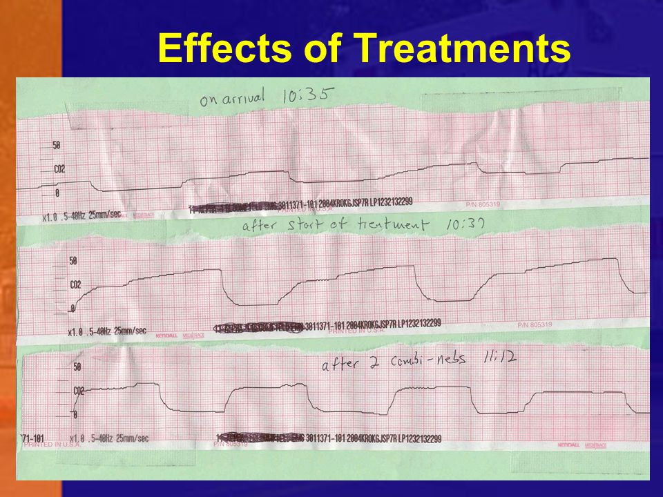 Effects of Treatments This is a patient with significant SOB.