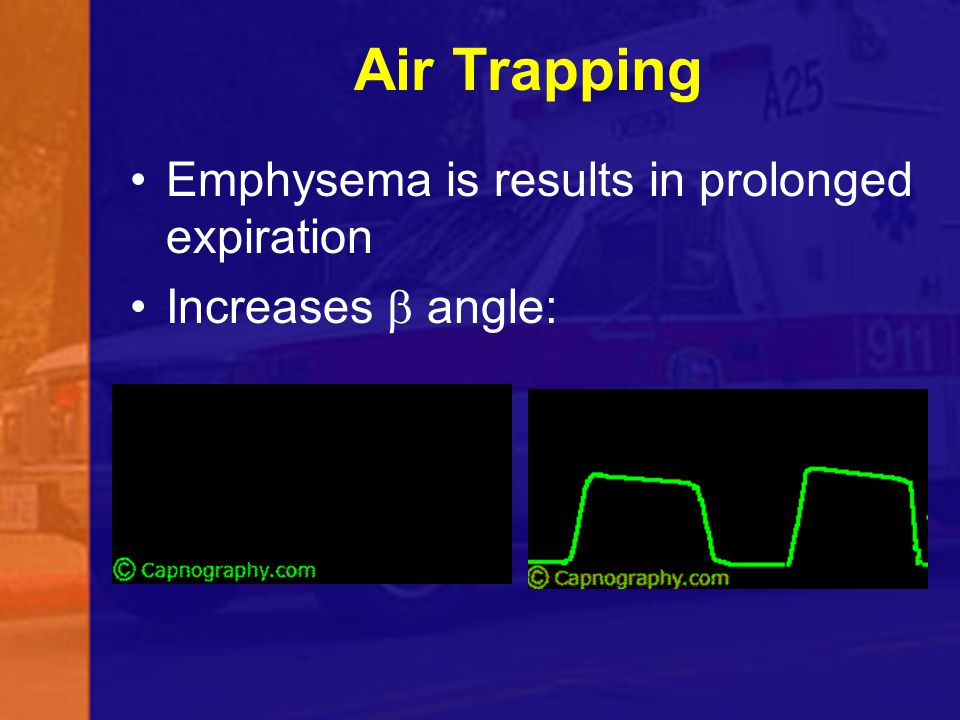 Air Trapping Emphysema is results in prolonged expiration