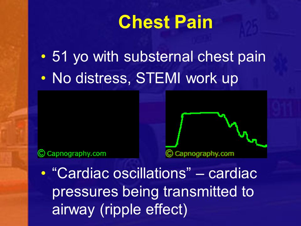 Chest Pain 51 yo with substernal chest pain No distress, STEMI work up