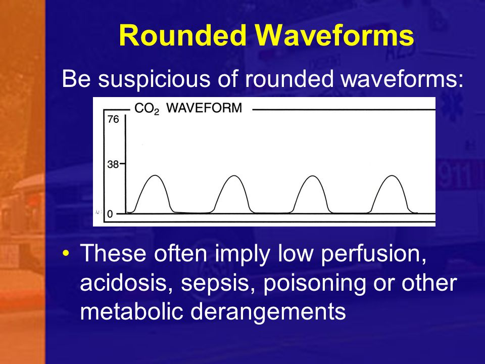 Rounded Waveforms Be suspicious of rounded waveforms: