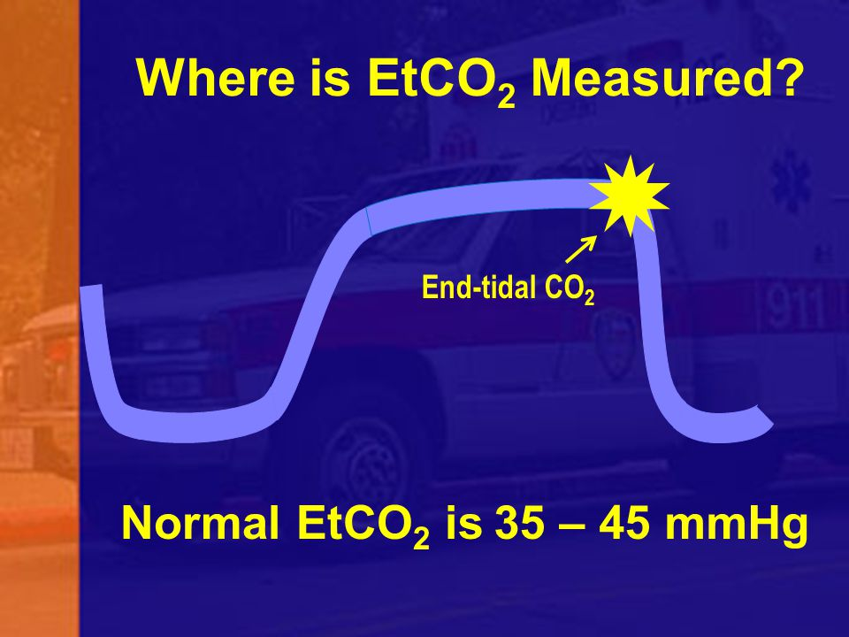 Where is EtCO2 Measured End-tidal CO2 Normal EtCO2 is 35 – 45 mmHg 98