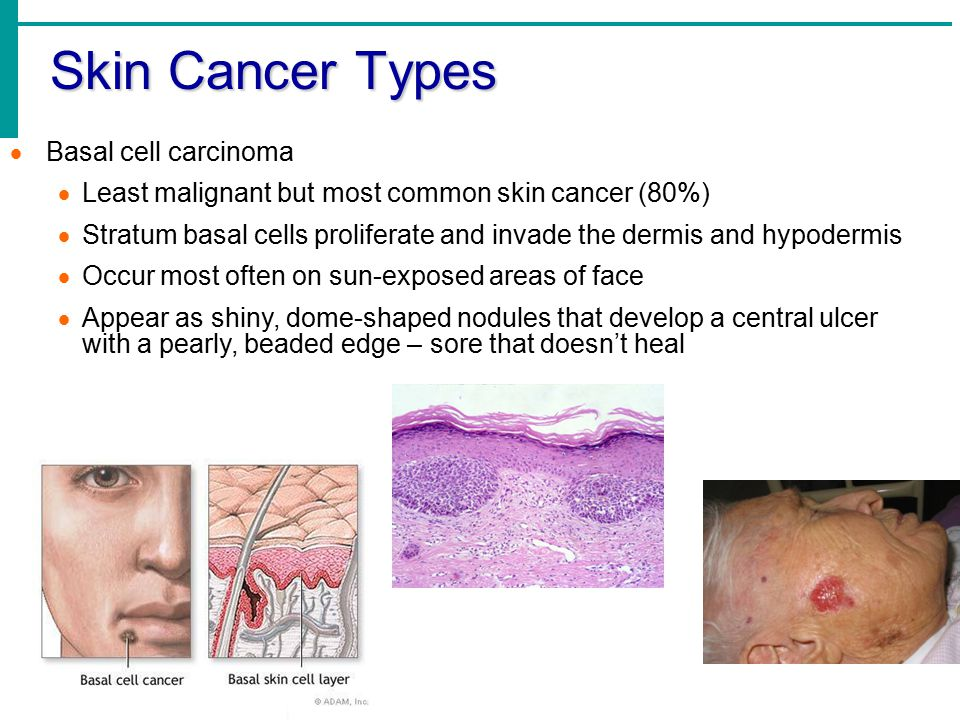 Skin Cancer Types Basal cell carcinoma