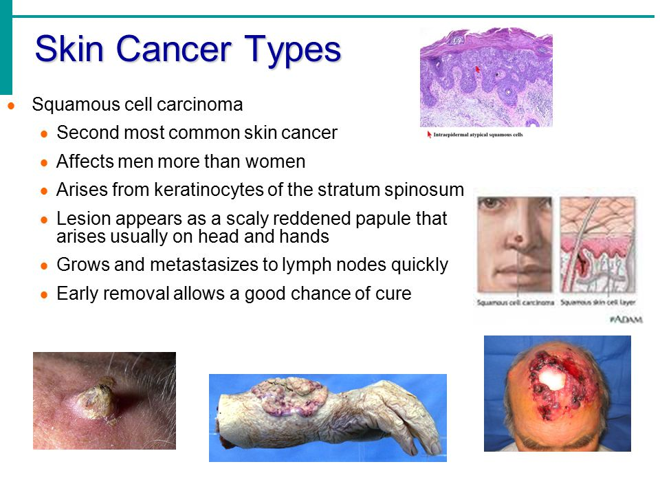 Skin Cancer Types Squamous cell carcinoma