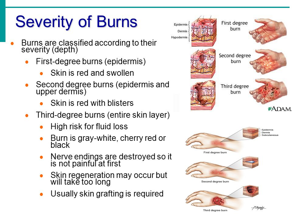 Severity of Burns Burns are classified according to their severity (depth) First-degree burns (epidermis)