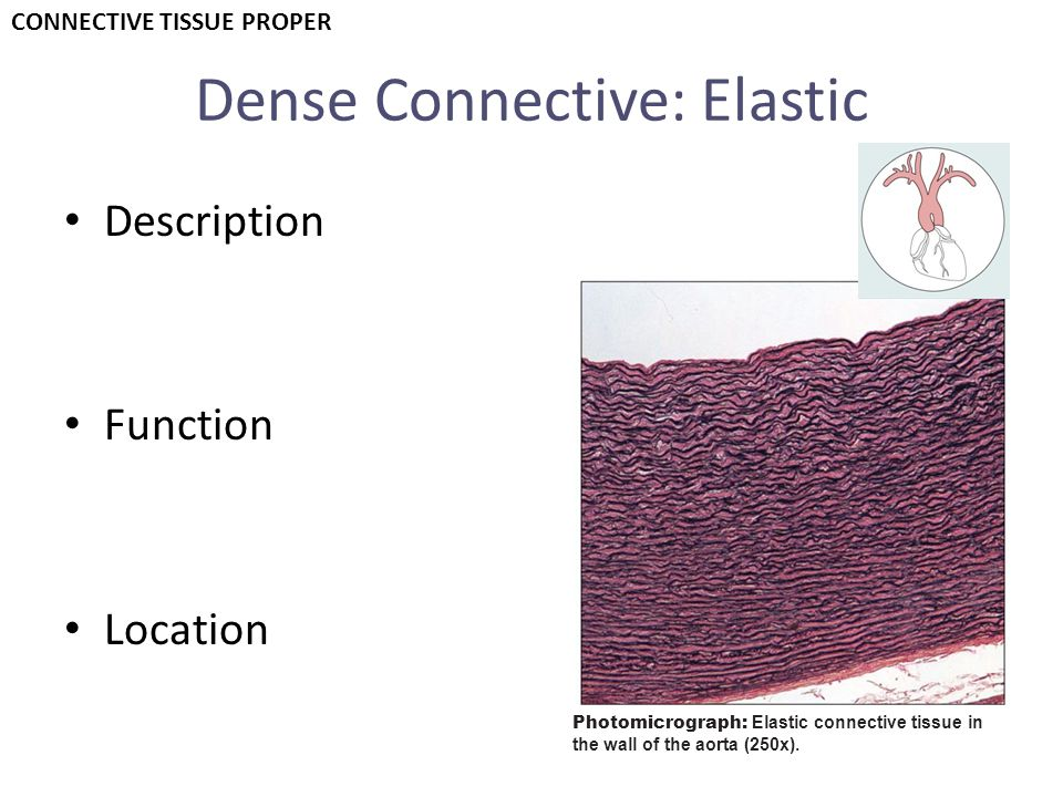 Dense Connective: Elastic