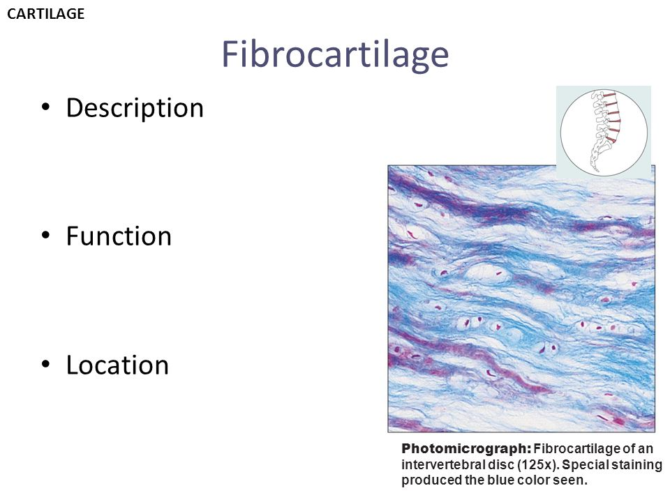 Fibrocartilage Description Function Location CARTILAGE