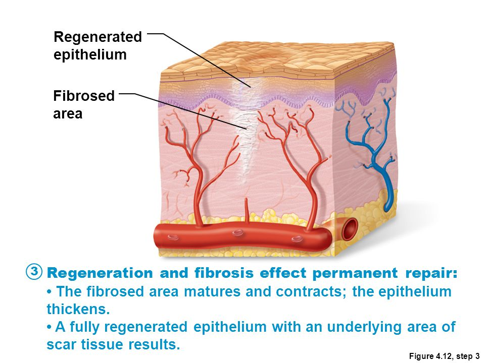 Regenerated epithelium