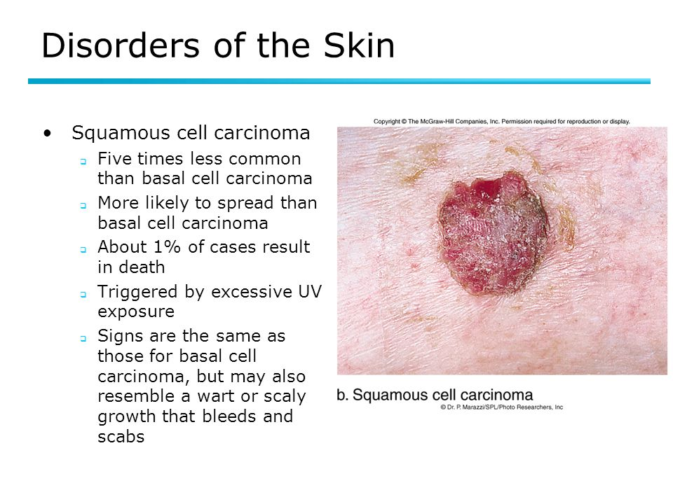 Disorders of the Skin Squamous cell carcinoma