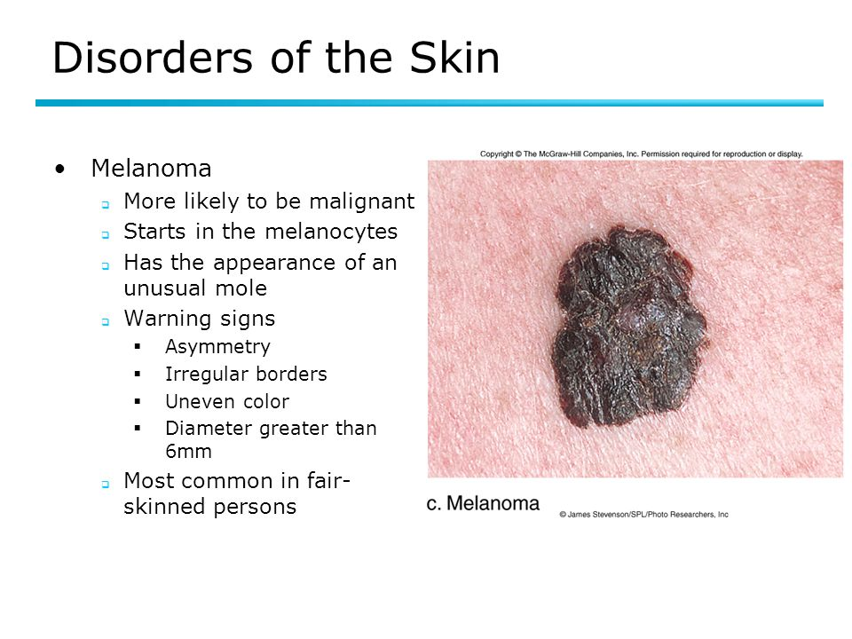 Disorders of the Skin Melanoma More likely to be malignant