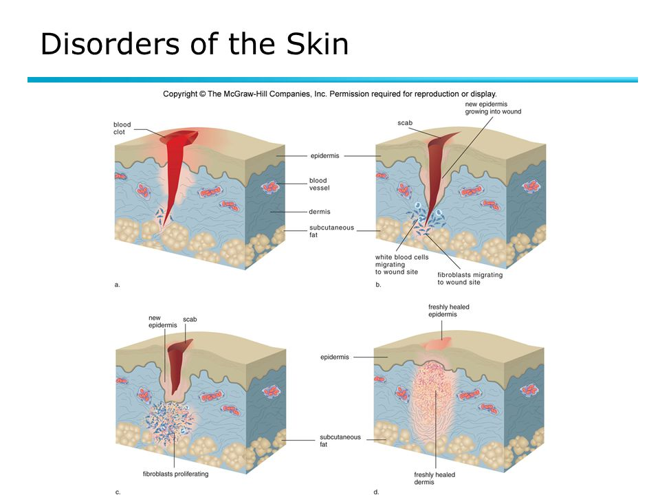 Disorders of the Skin