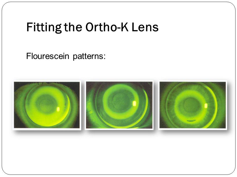 Fitting the Ortho-K Lens