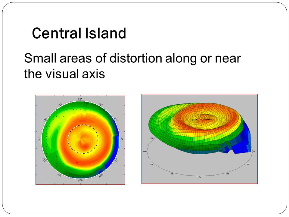 Central Island Small areas of distortion along or near the visual axis