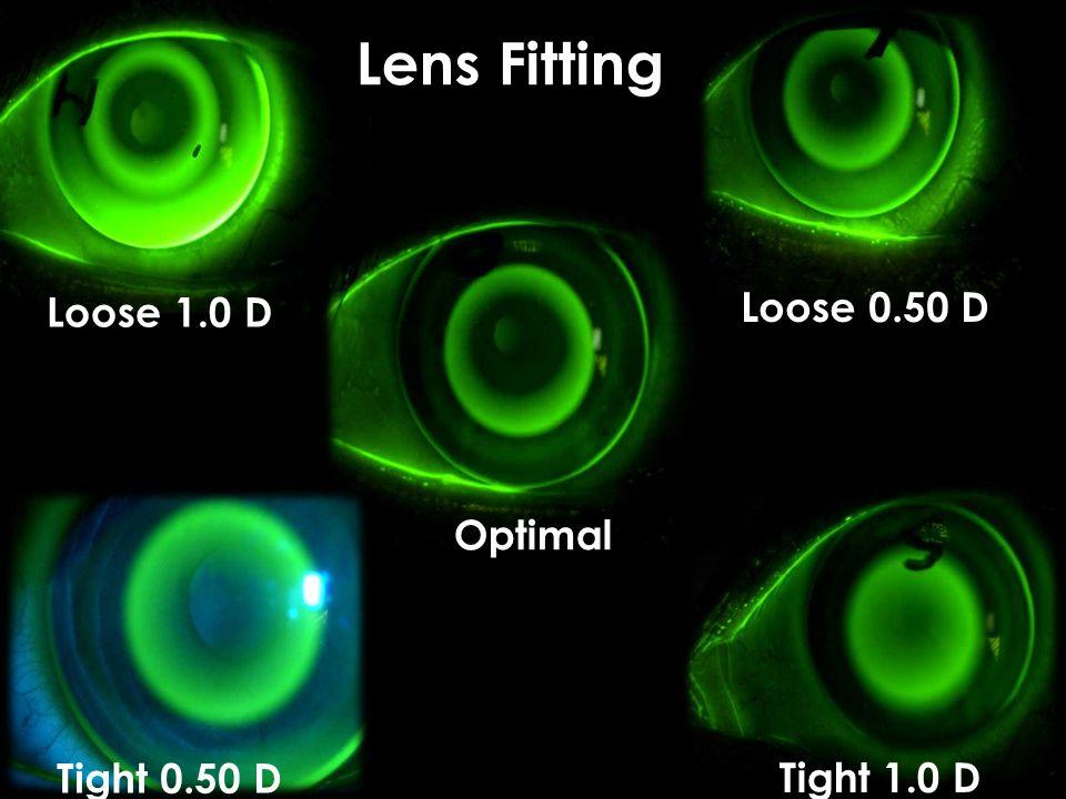 Lens Fitting Loose 1.0 D Loose 0.50 D Optimal Tight 0.50 D Tight 1.0 D