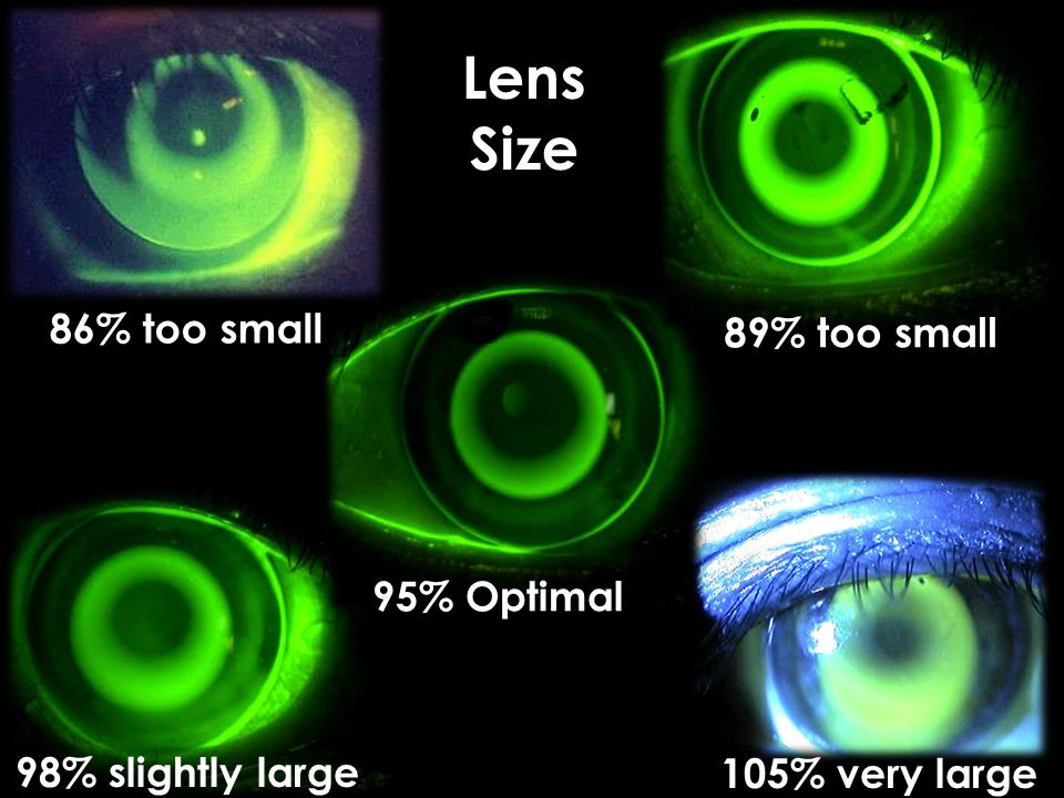 Lens Size 86% too small 89% too small 95% Optimal 98% slightly large