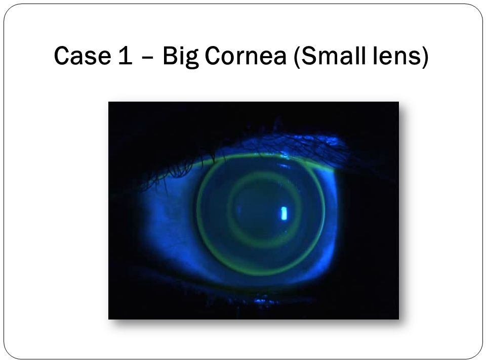 Case 1 – Big Cornea (Small lens)