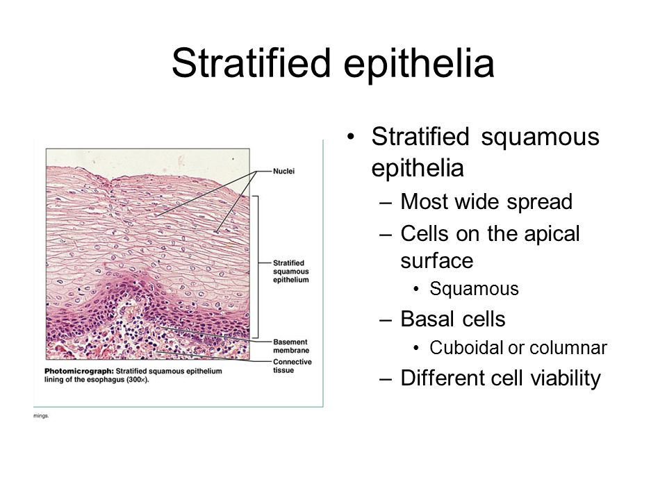 Stratified epithelia Stratified squamous epithelia Most wide spread