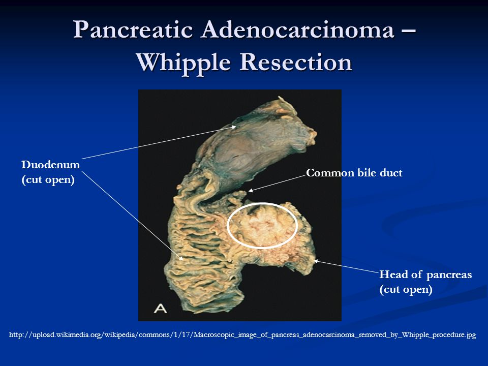 Pancreatic Adenocarcinoma – Whipple Resection
