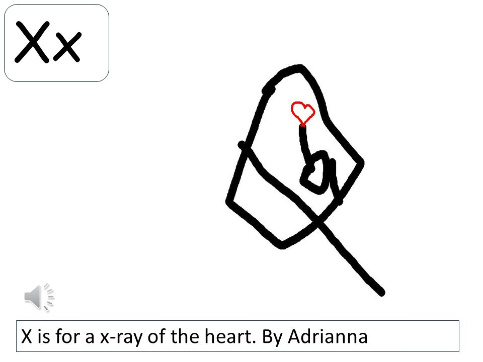 Xx X is for a x-ray of the heart. By Adrianna