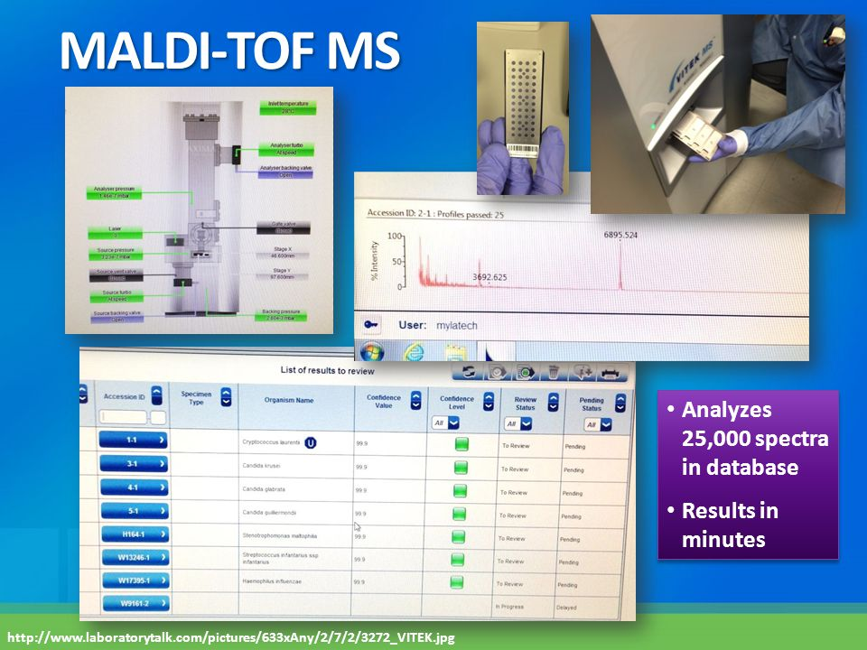 MALDI-TOF MS Analyzes 25,000 spectra in database Results in minutes