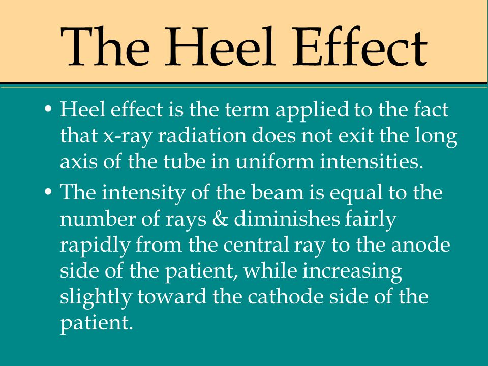 The Heel Effect Heel effect is the term applied to the fact that x-ray radiation does not exit the long axis of the tube in uniform intensities.