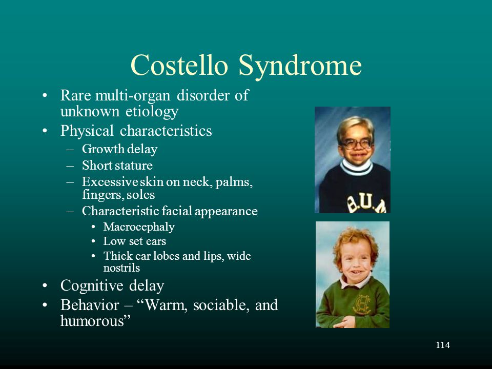 Costello Syndrome Rare multi-organ disorder of unknown etiology