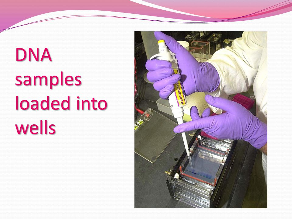 DNA samples loaded into wells