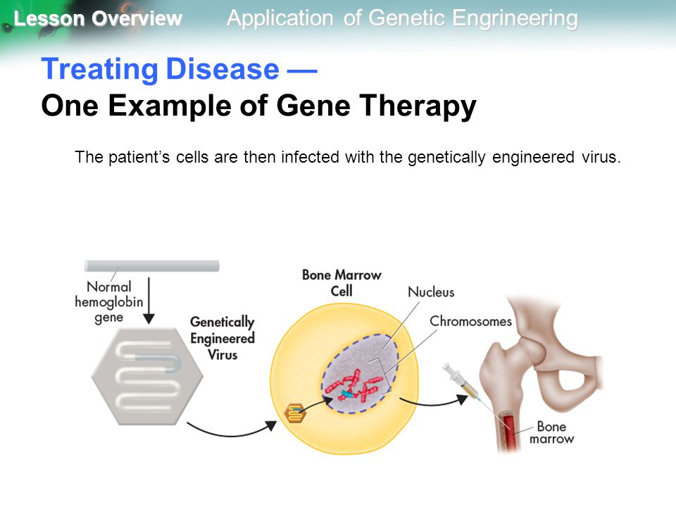 Treating Disease — One Example of Gene Therapy