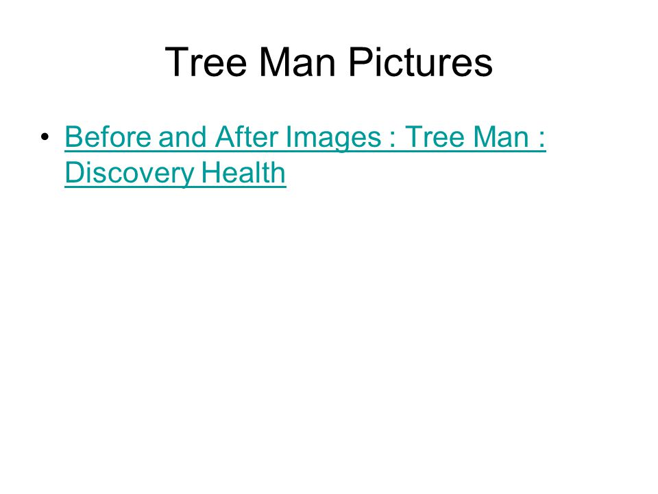 Tree Man Pictures Before and After Images : Tree Man : Discovery Health