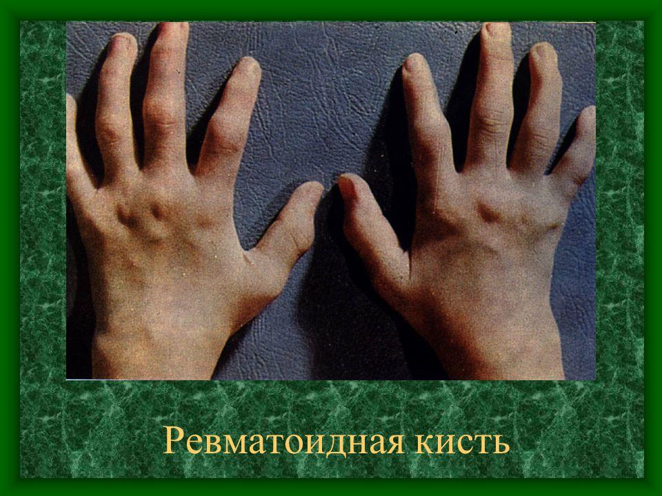Ревматоидная кисть