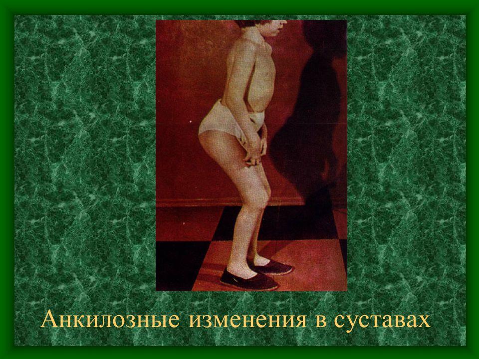 Анкилозные изменения в суставах