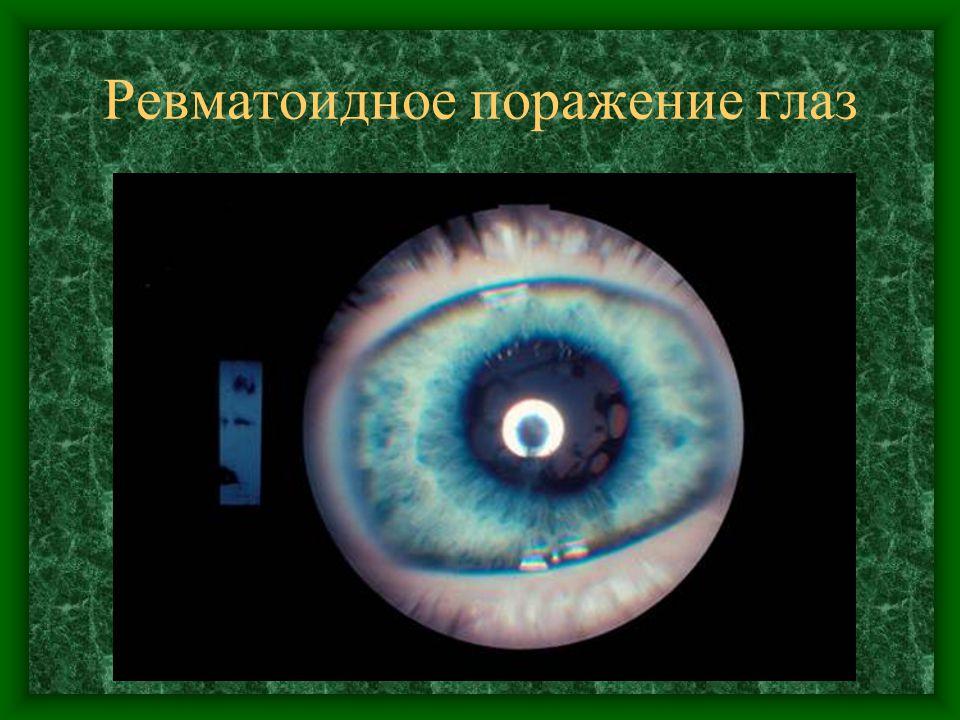 Ревматоидное поражение глаз