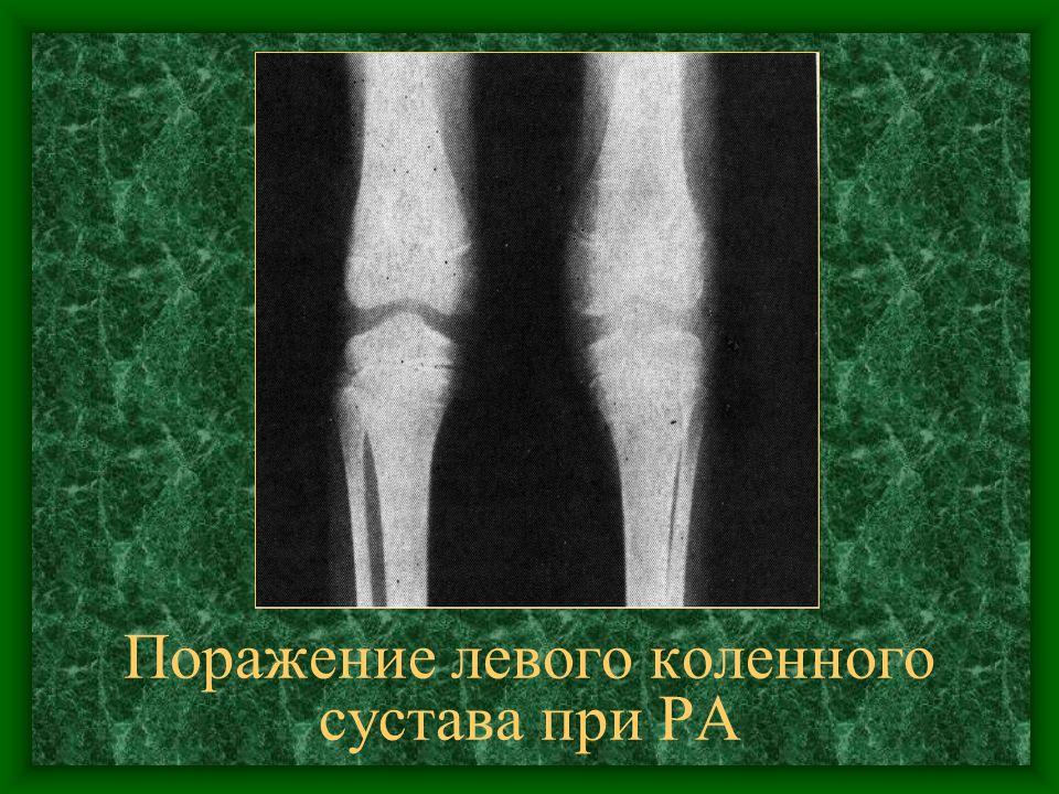 Поражение левого коленного сустава при РА
