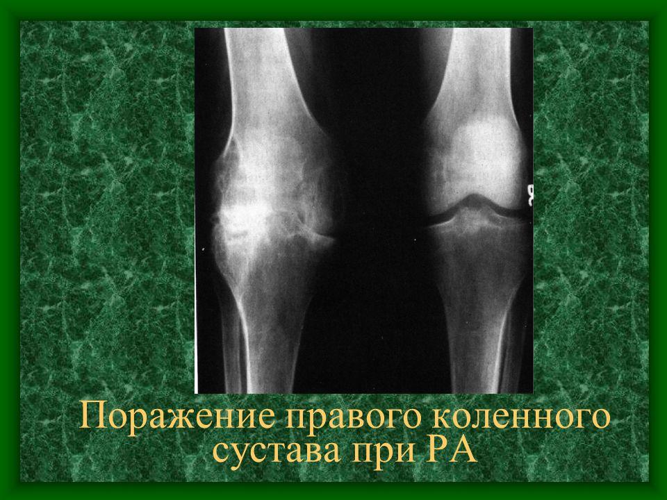 Поражение правого коленного сустава при РА