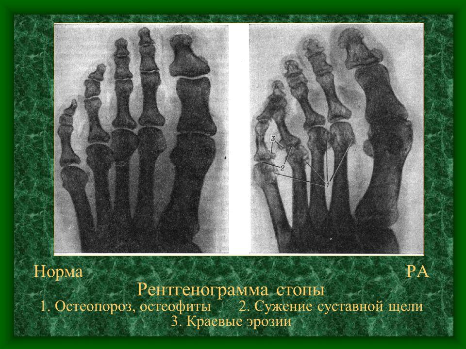 Норма. РА Рентгенограмма стопы 1. Остеопороз, остеофиты 2